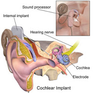 Cochlear Implant Diagram